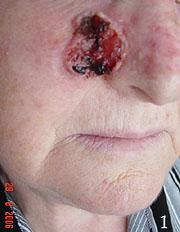 Rak skóry policzka